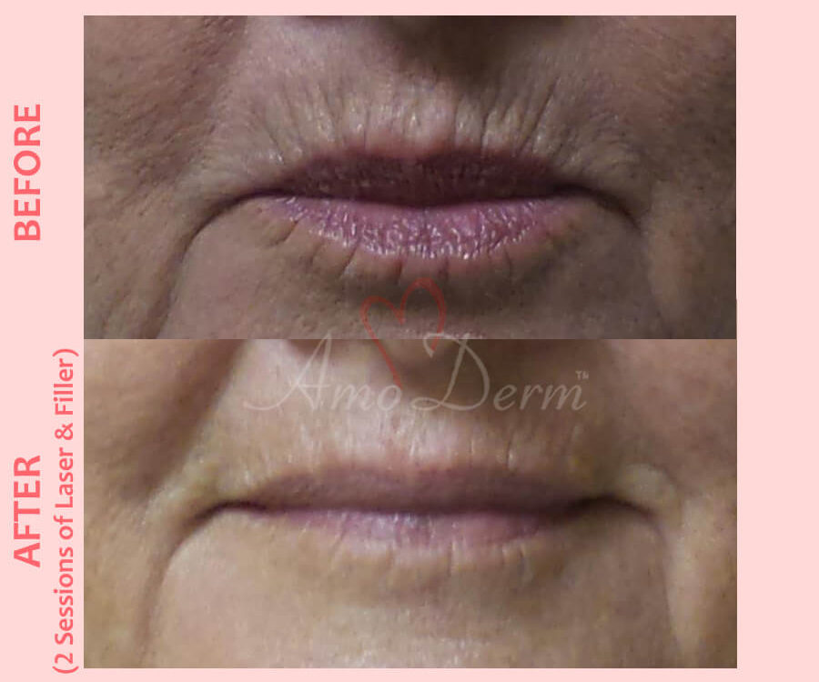Treatment for smoker's lines above upper lip with filler injection and Erbium laser