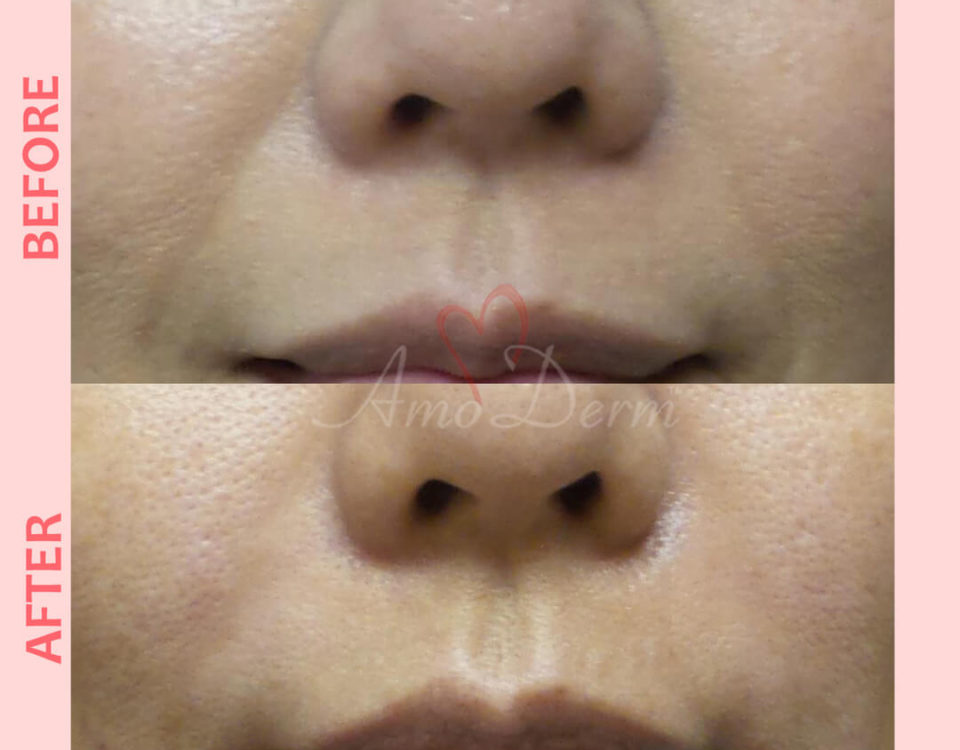 Treatment of nasolabial folds as part of non-surgical facelift