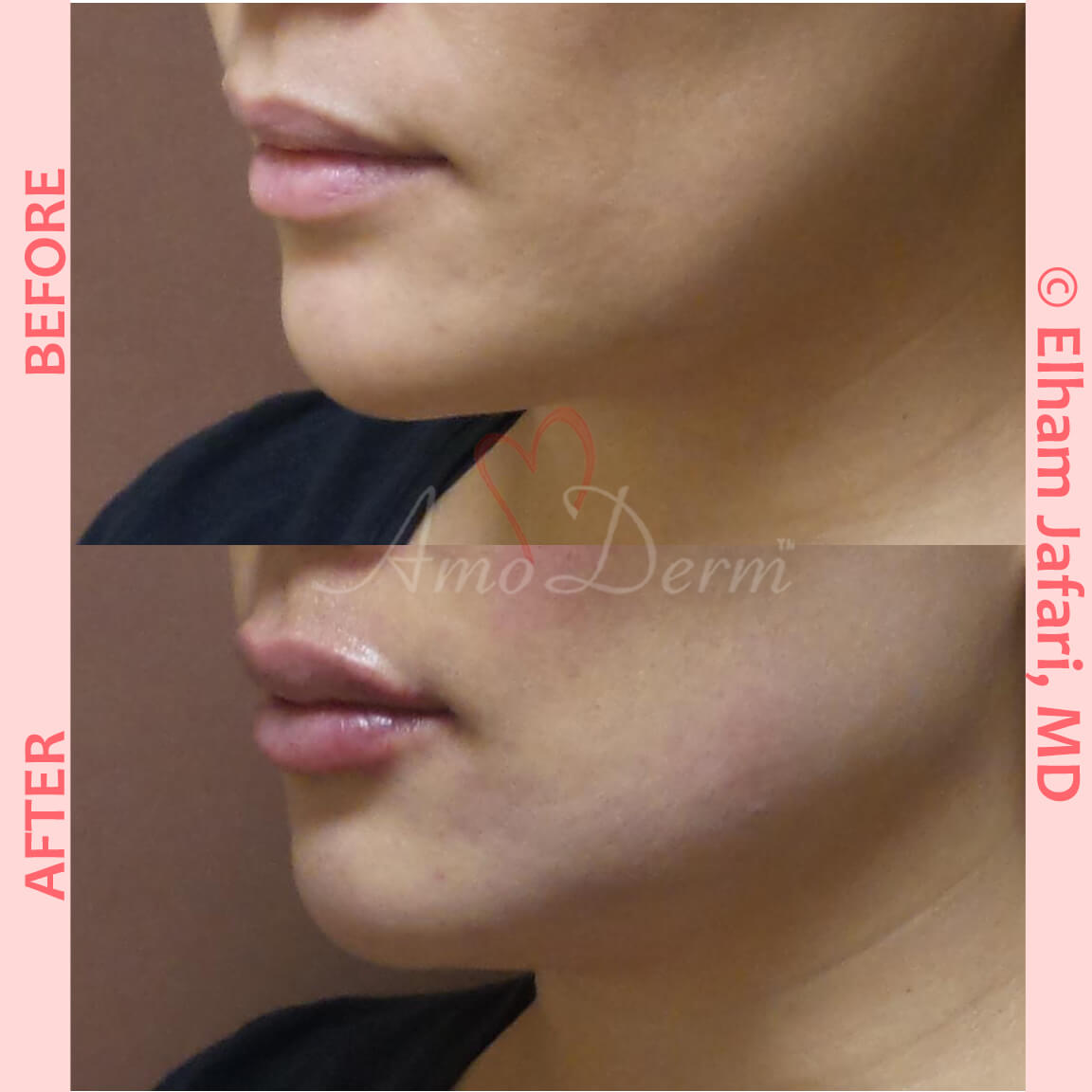 Filler for jawline sculpting and contouring to create a chisled jawline as well as lip augmentation