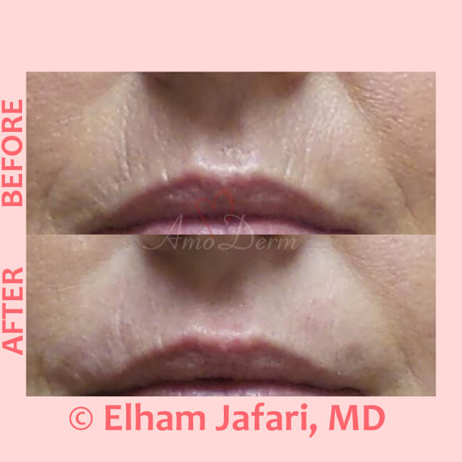Treatment for smoker's line above upper lip with Botox injection