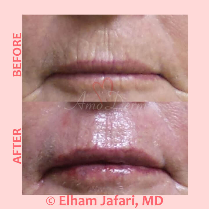 Treatment of smoker's lines and lip augmentation with hyaluronic acid filler