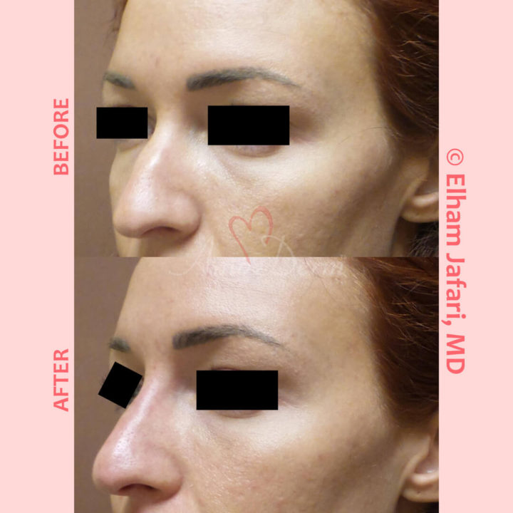 Non-surgical nose job with injection of dermal fillers