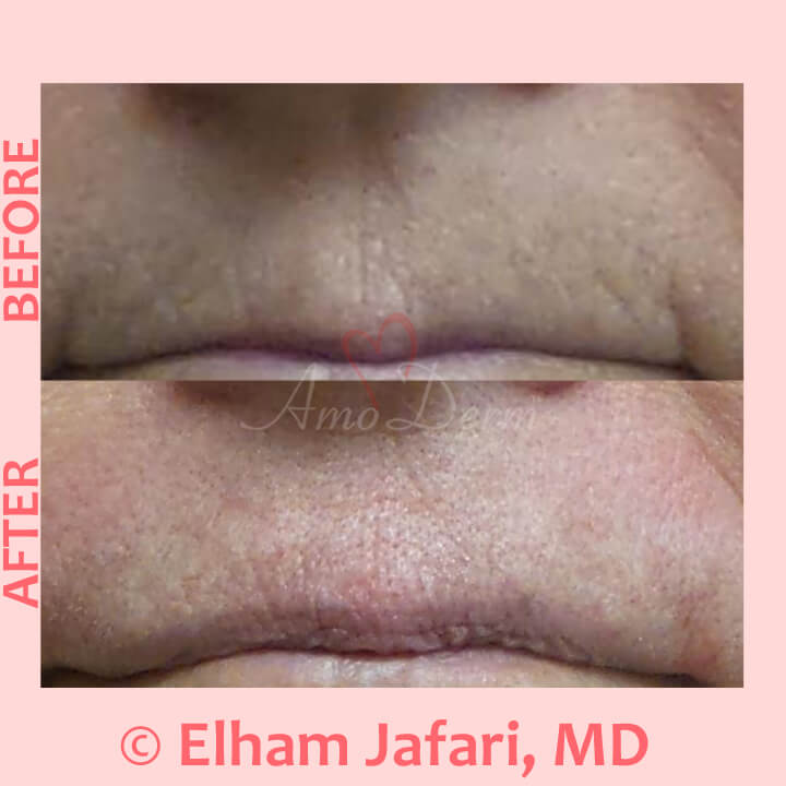 Treatment for smoker's line above upper lip with Botox (or Jeuveau (Newtox), Dysport or Xeomin)