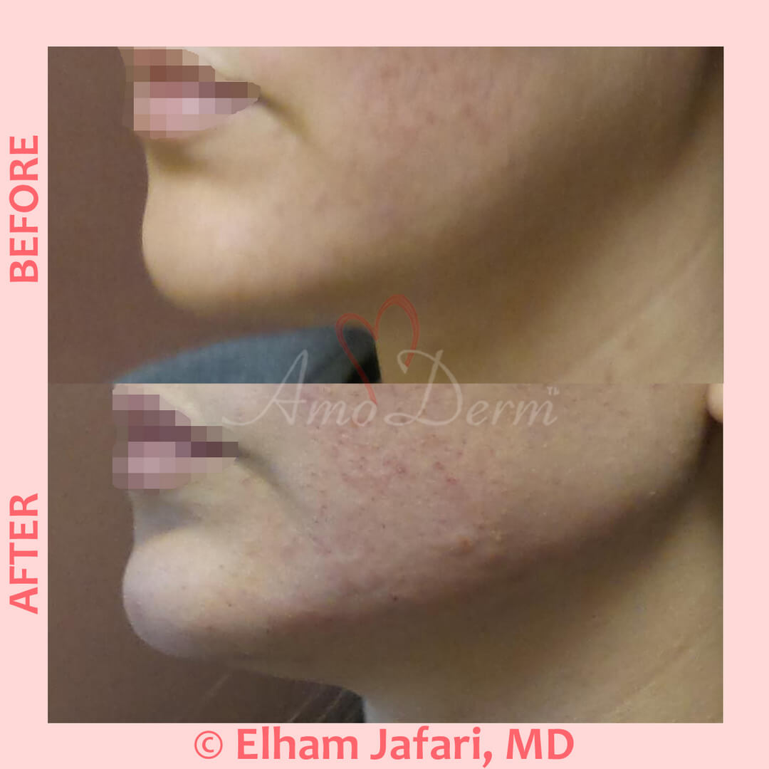 Jawline contouring and restoration with fillers
