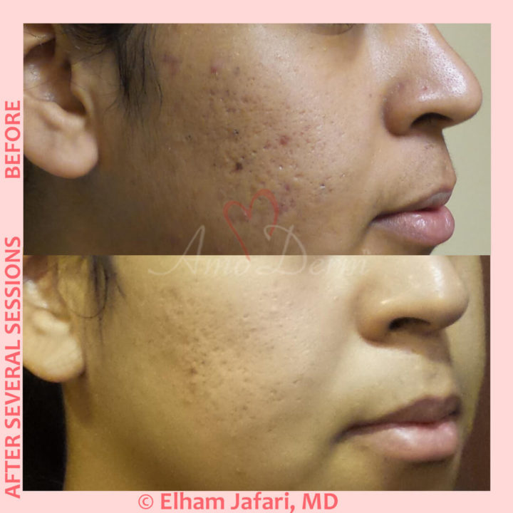Treatment of acne scarring and other types of scars with micro-needling