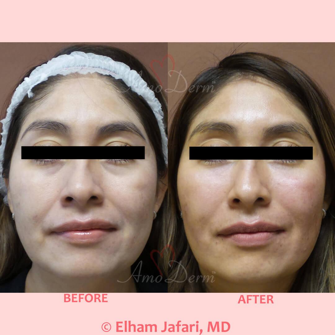 Treatment of nasolabial folds, marionette lines, dark circles under eyes and cheek restoration
