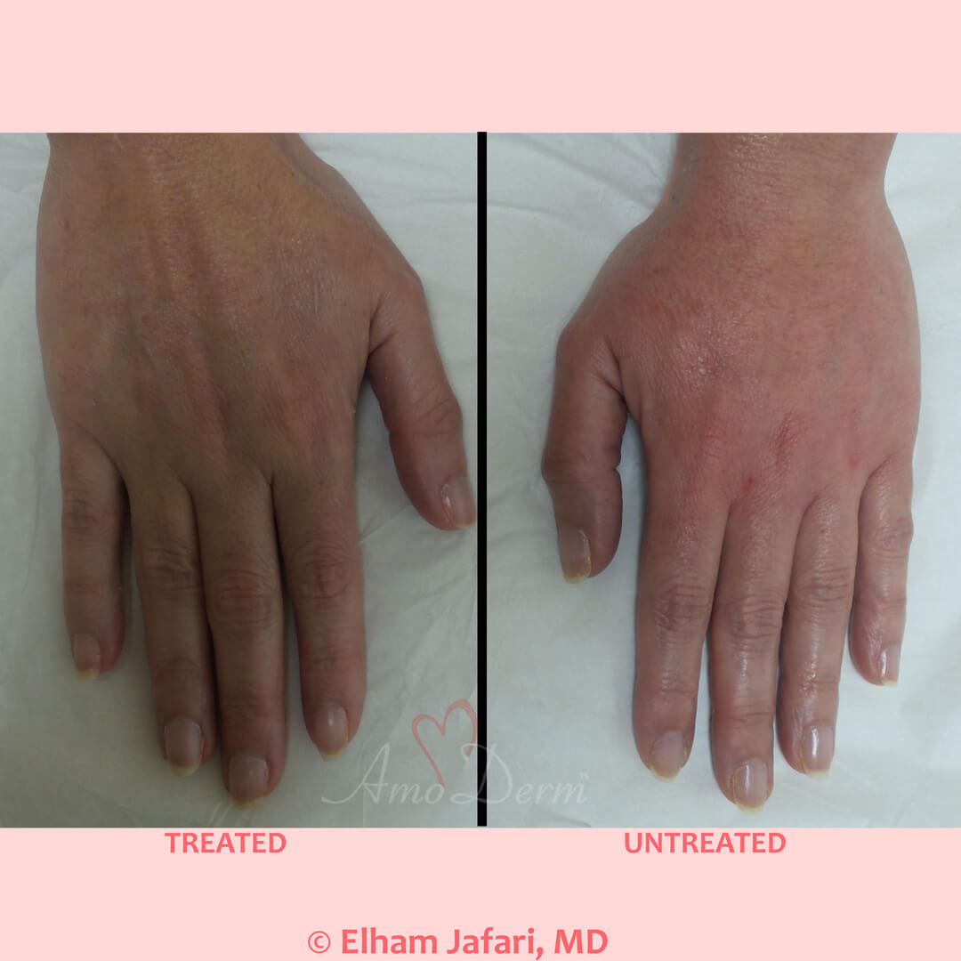 Hand rejuvenation with dermal filler injection