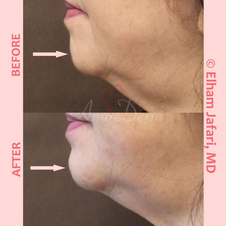 Non-surgical chin augmentation and contouring with filler injection