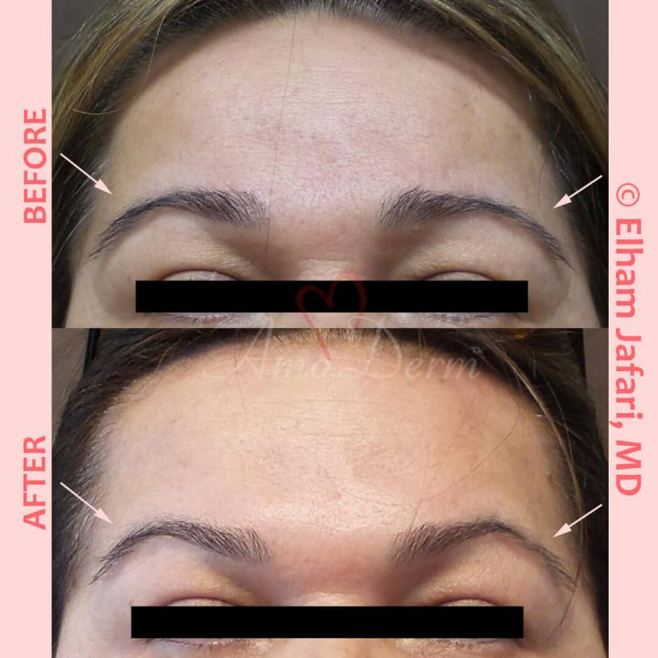 Non-surgical eyebrow lift and treatment of lines in forehead