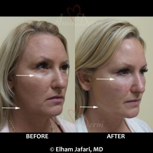 Liquid Facelift with filler injection in jawlines
