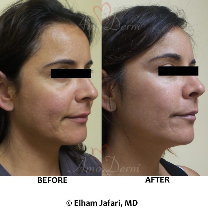 Liquid facelift cosmetic treatments