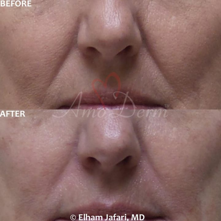 Treatment of nasolabial folds