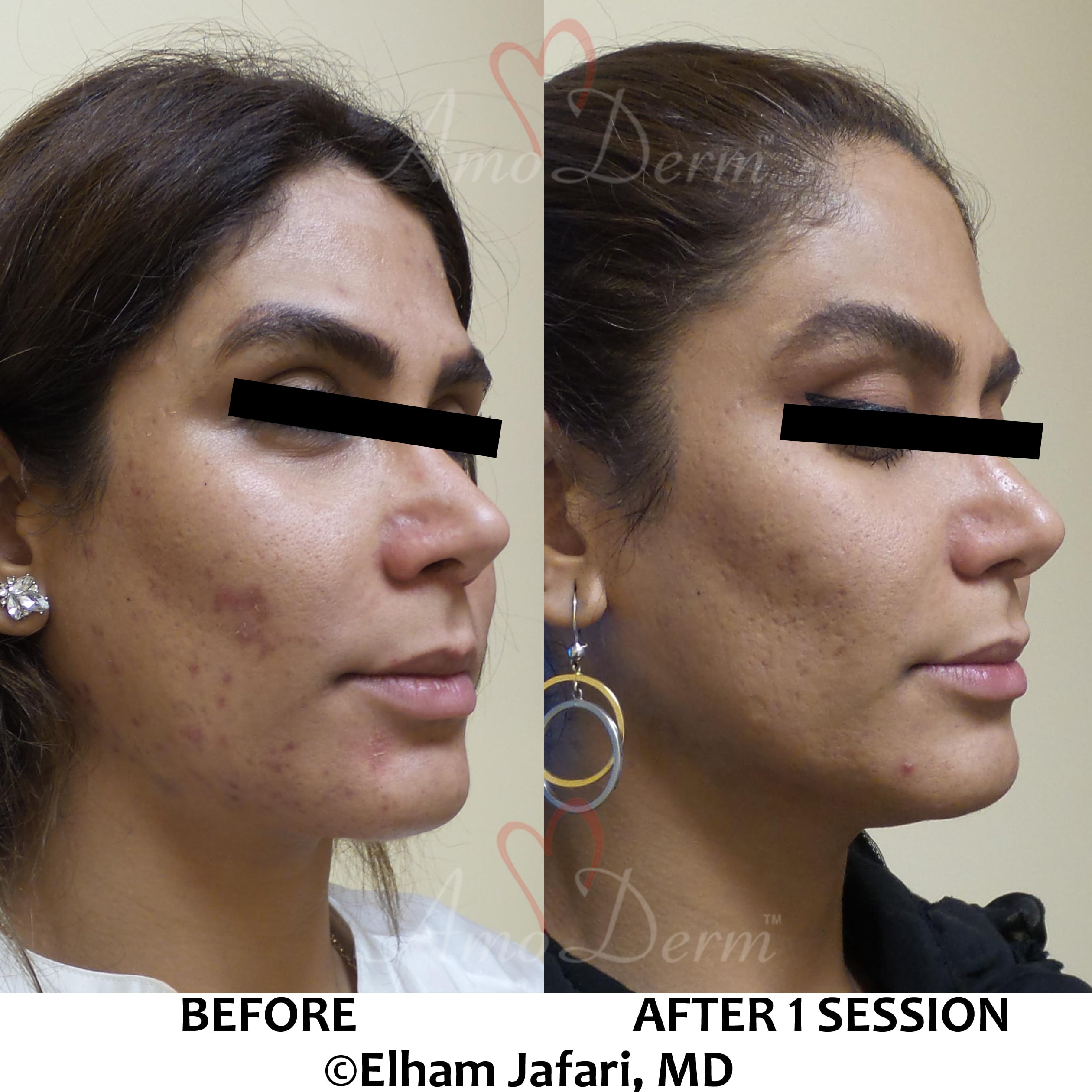 Treatment of acne scars with Fractional CO2 laser skin resurfacing