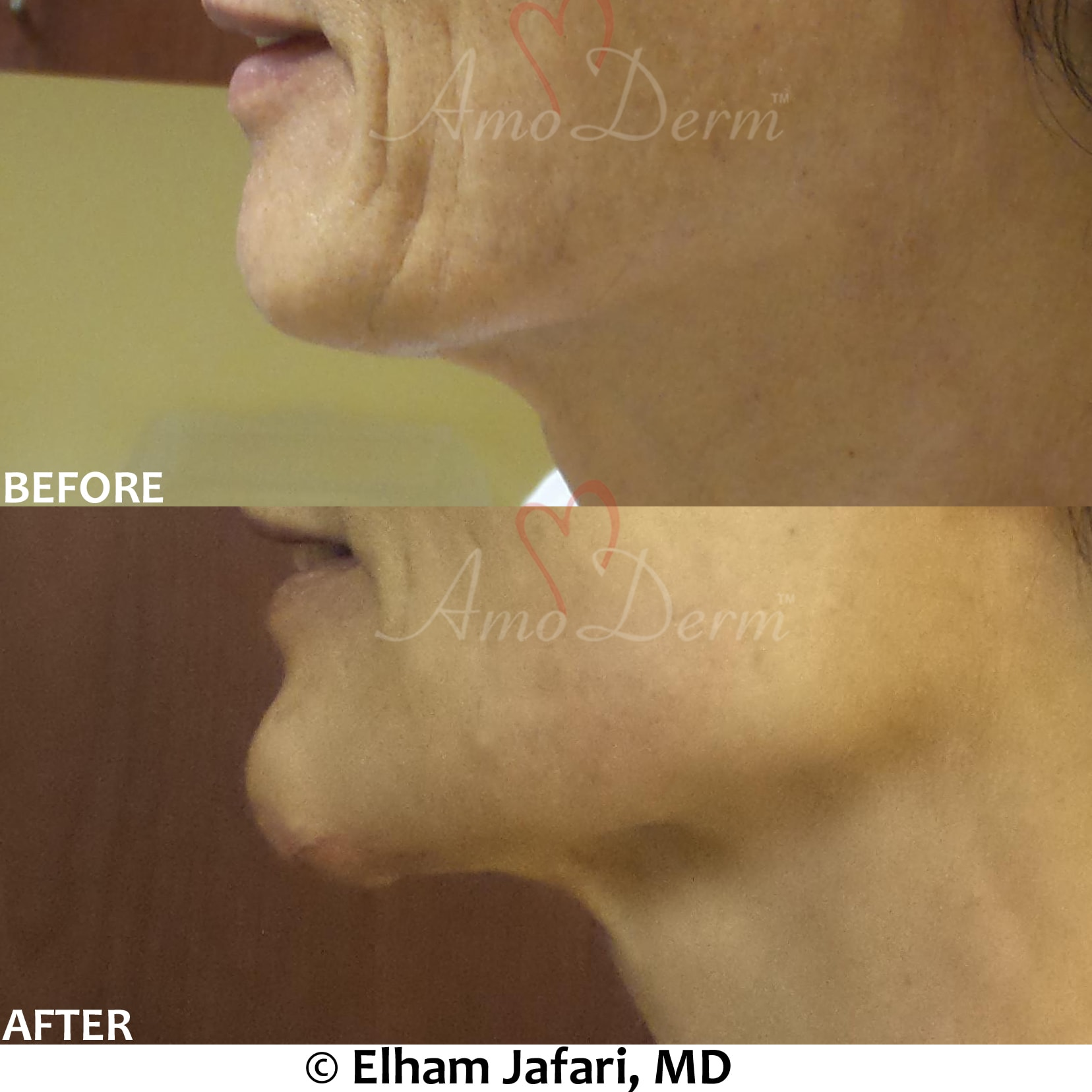 Chin augmentation and enhancement with filler injection (Voluma, Bellafill, Radiesse)