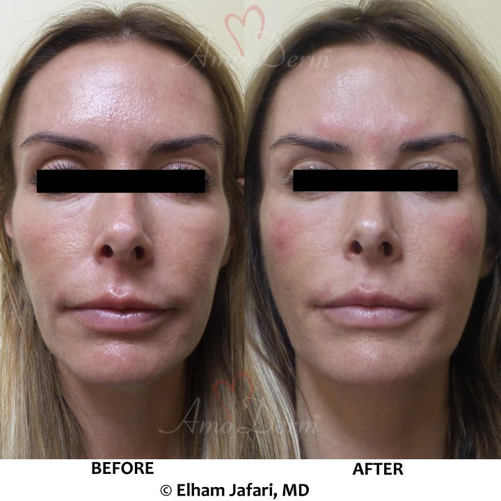 Liquid Facelift Cosmetic Treatments