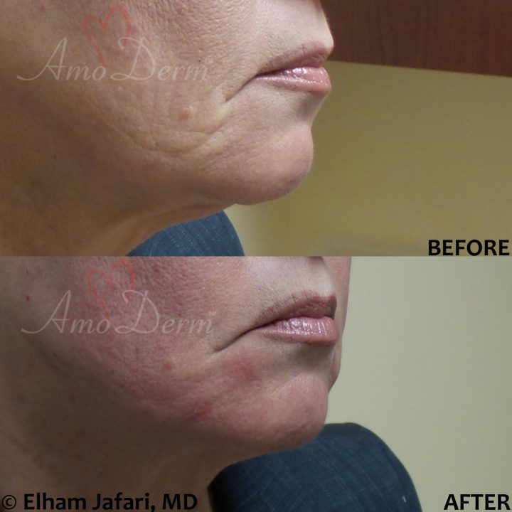 Filler and PDO thread lift for jawline