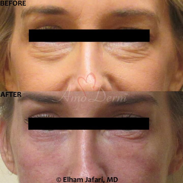 Nonsurgical treatment of dark circles, bags and hollows under the eyes