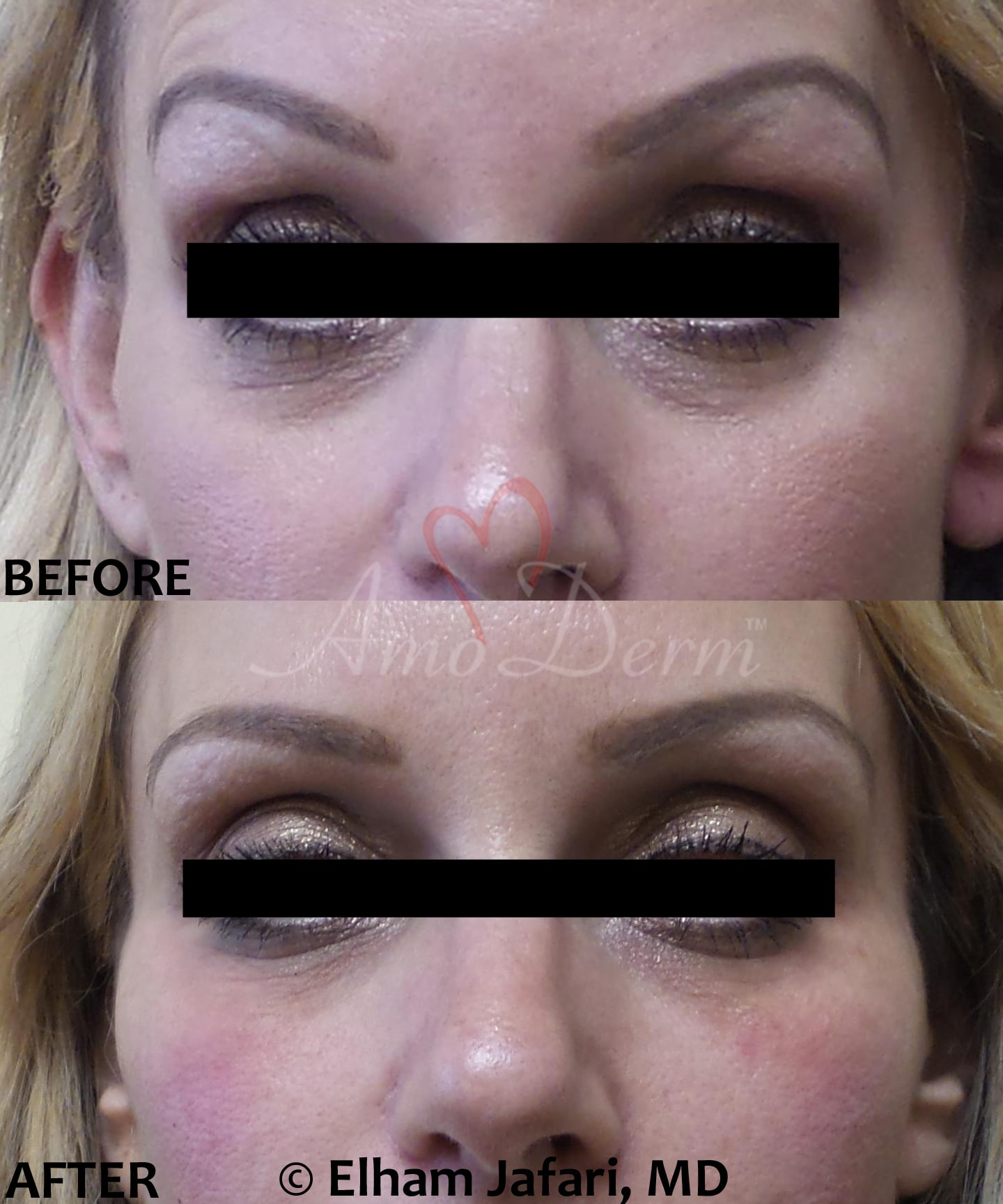 Treatment of dark circles, hollows or bags under eyes (puffy eyelids)