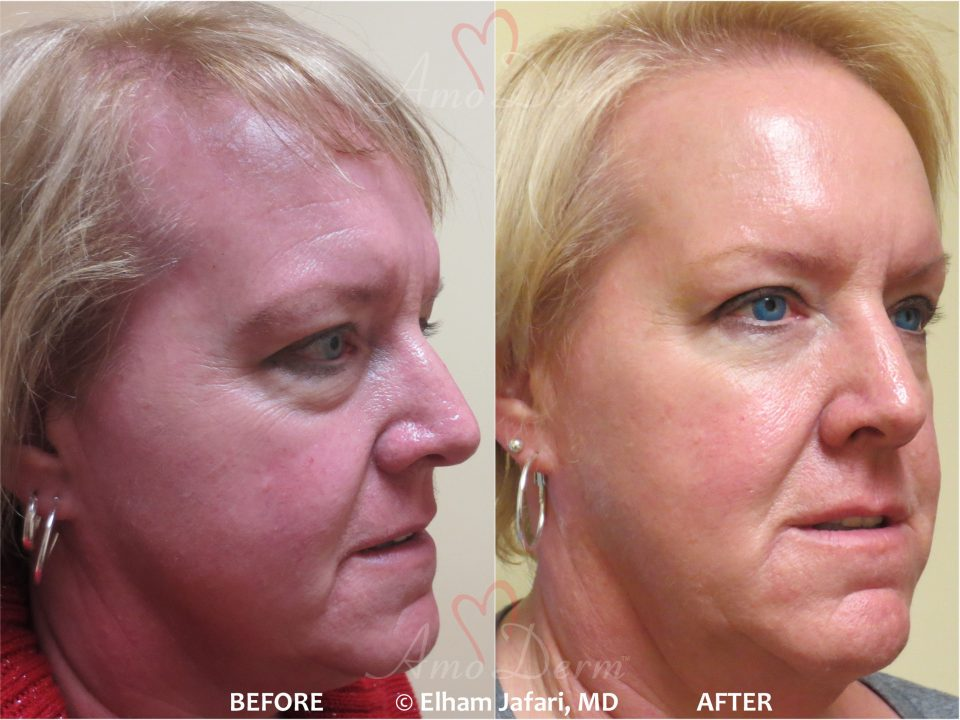 Liquid facelift with fillers & Botox Amoderm : Before & After Gallery