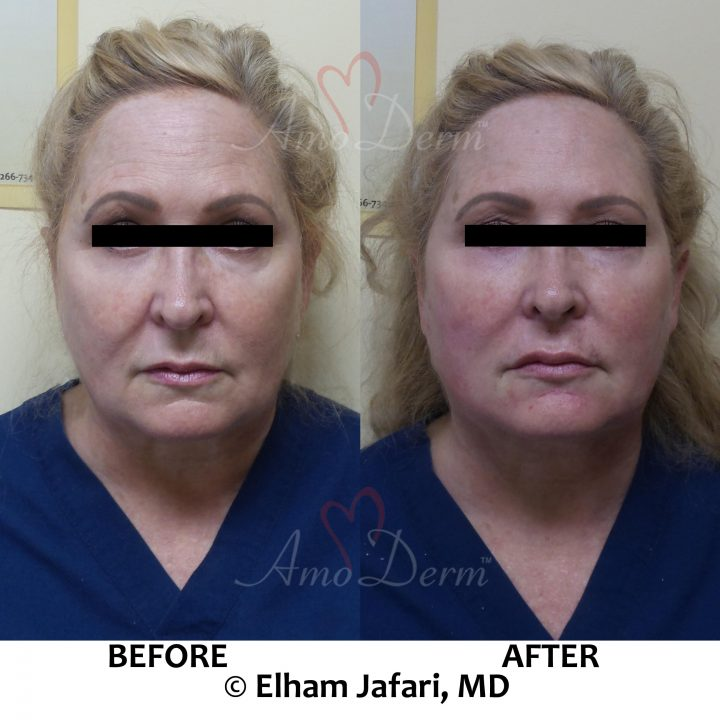 Liquid Facelift with PDO threads & filler injection in cheeks and under the eyes