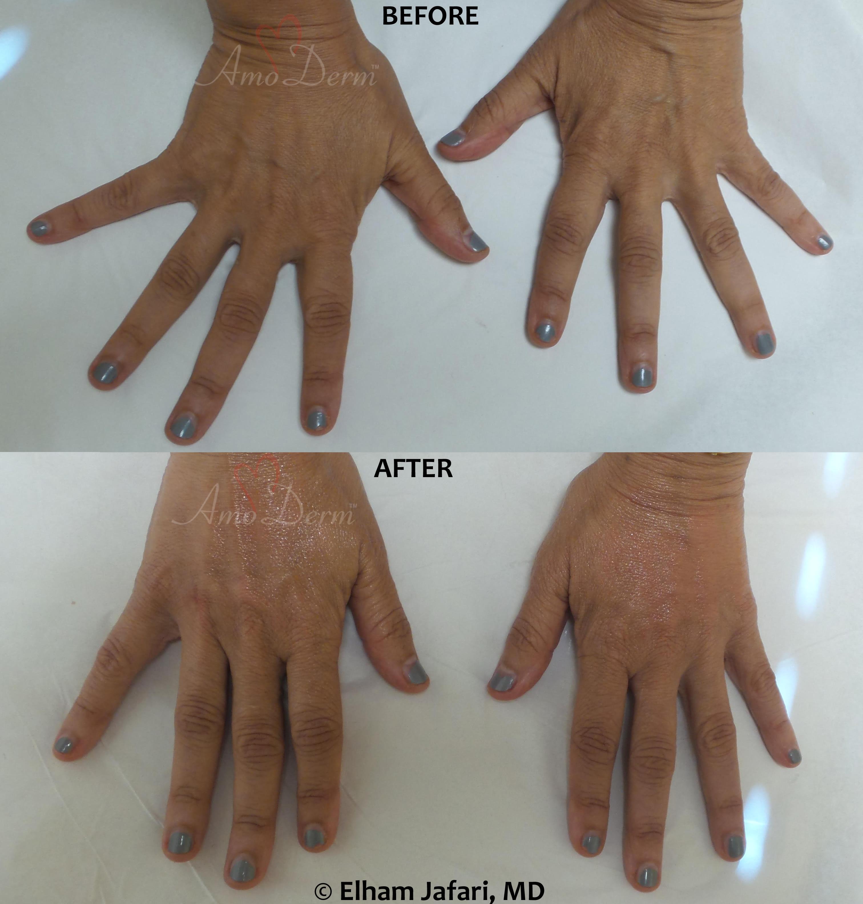Hand rejuvenation with dermal filler injection