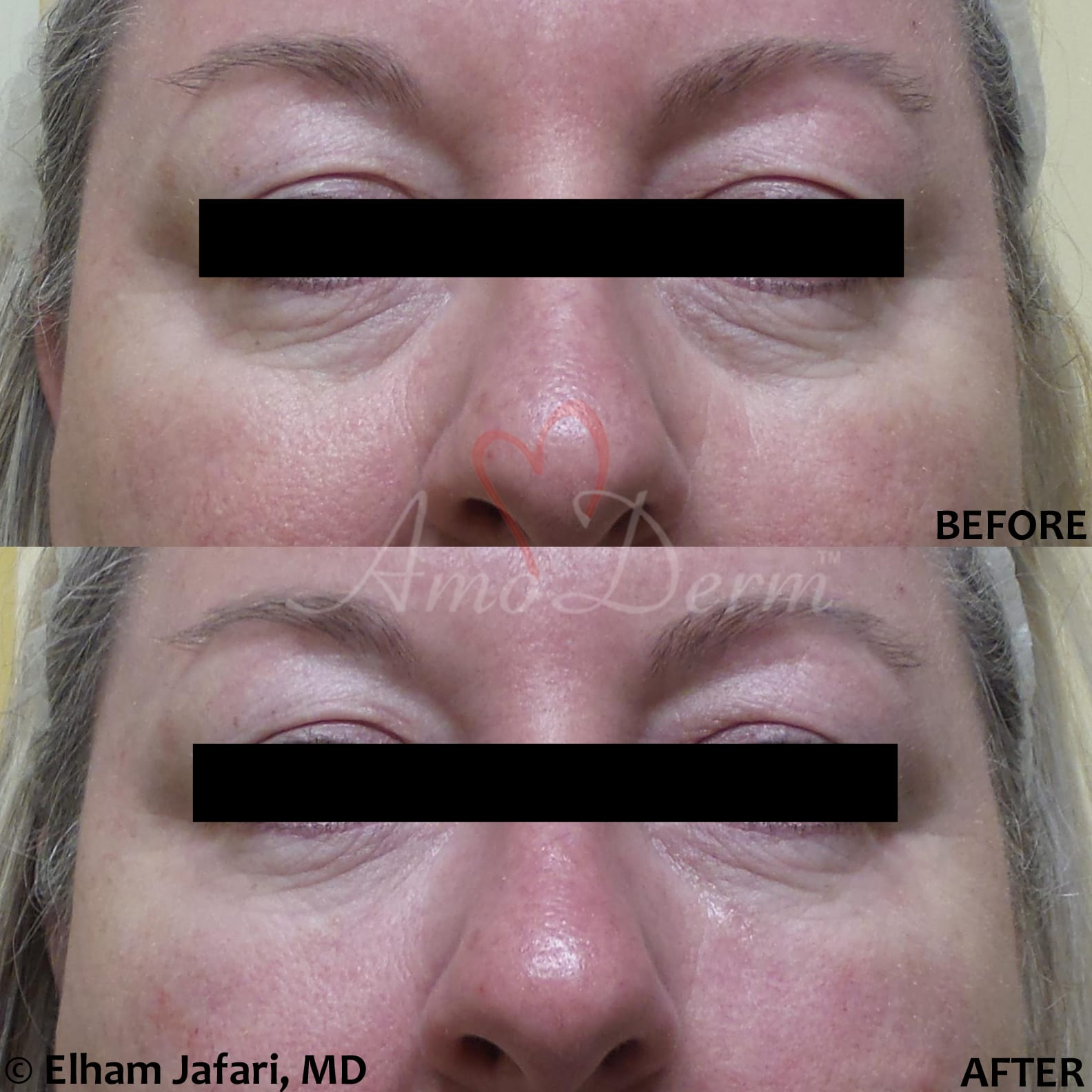 Treatment of dark circles using micro-cannula technique