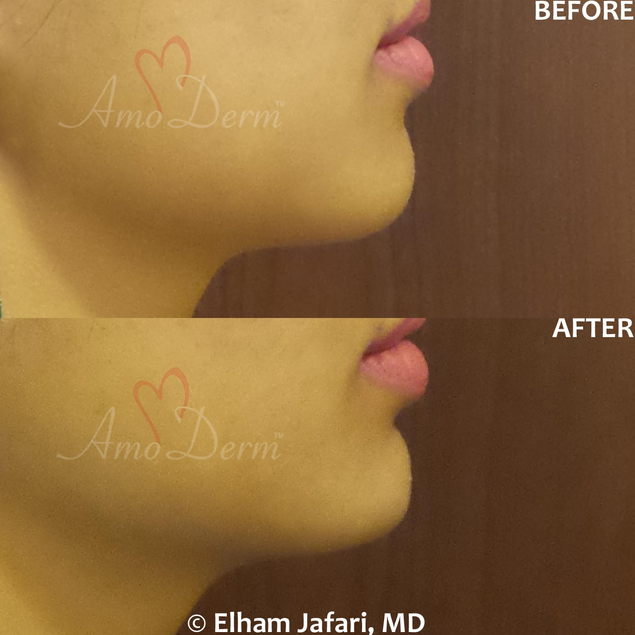 Chin augmentation and enhancement with filler injection