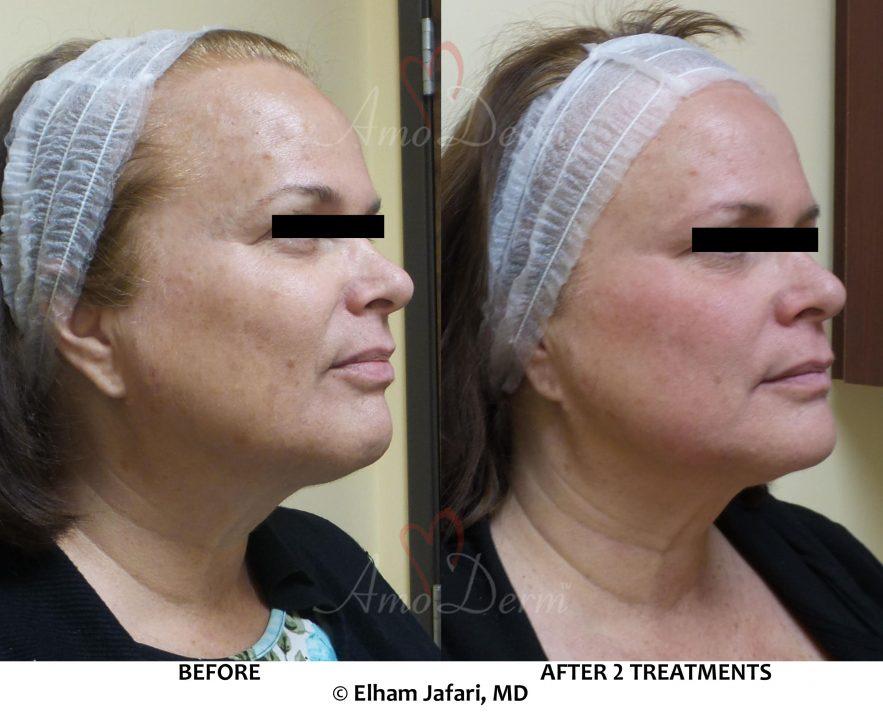 Microlaser Peel - Erbium laser skin resurfacing