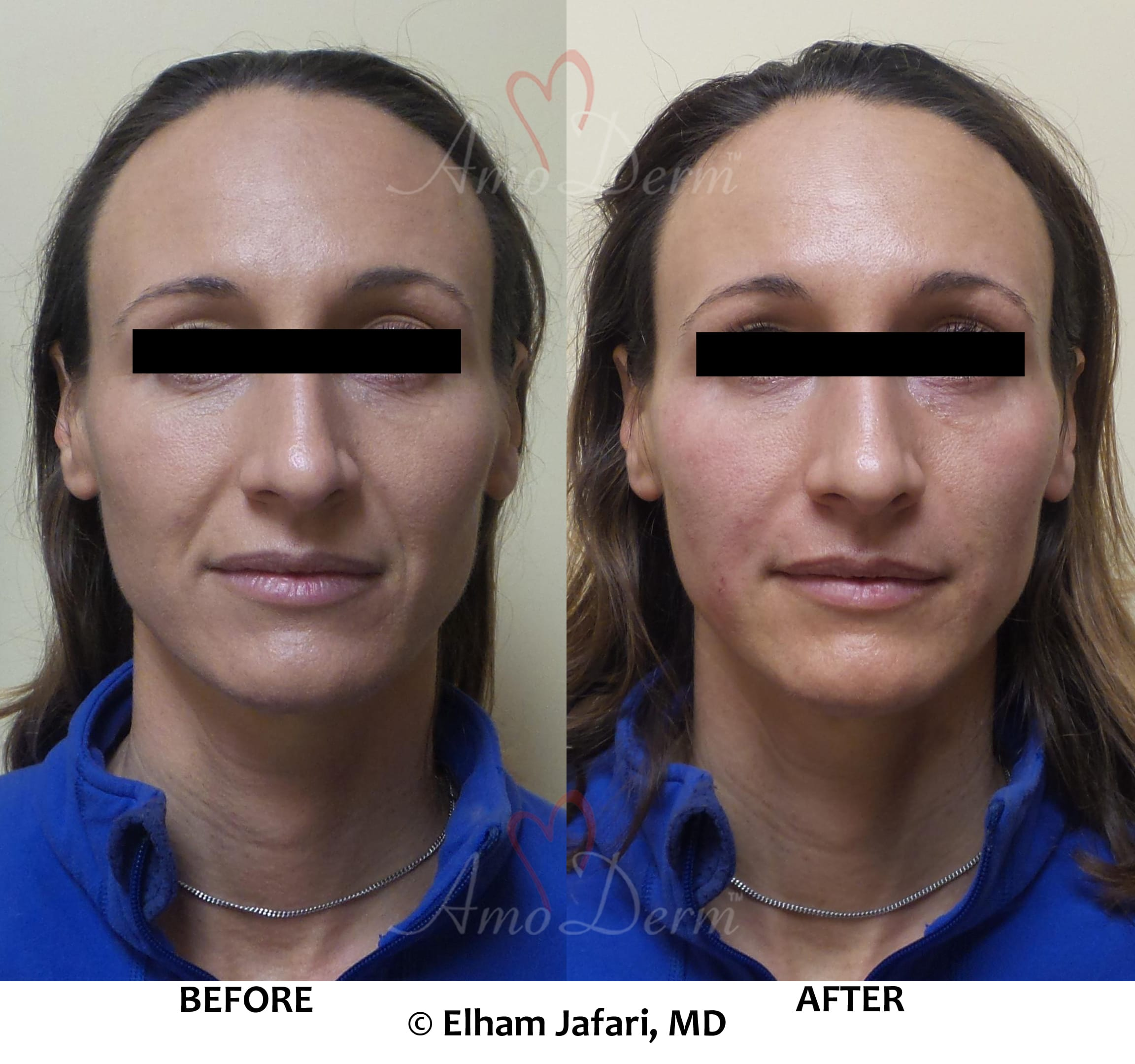 Treatment of nasolabial folds and cheek