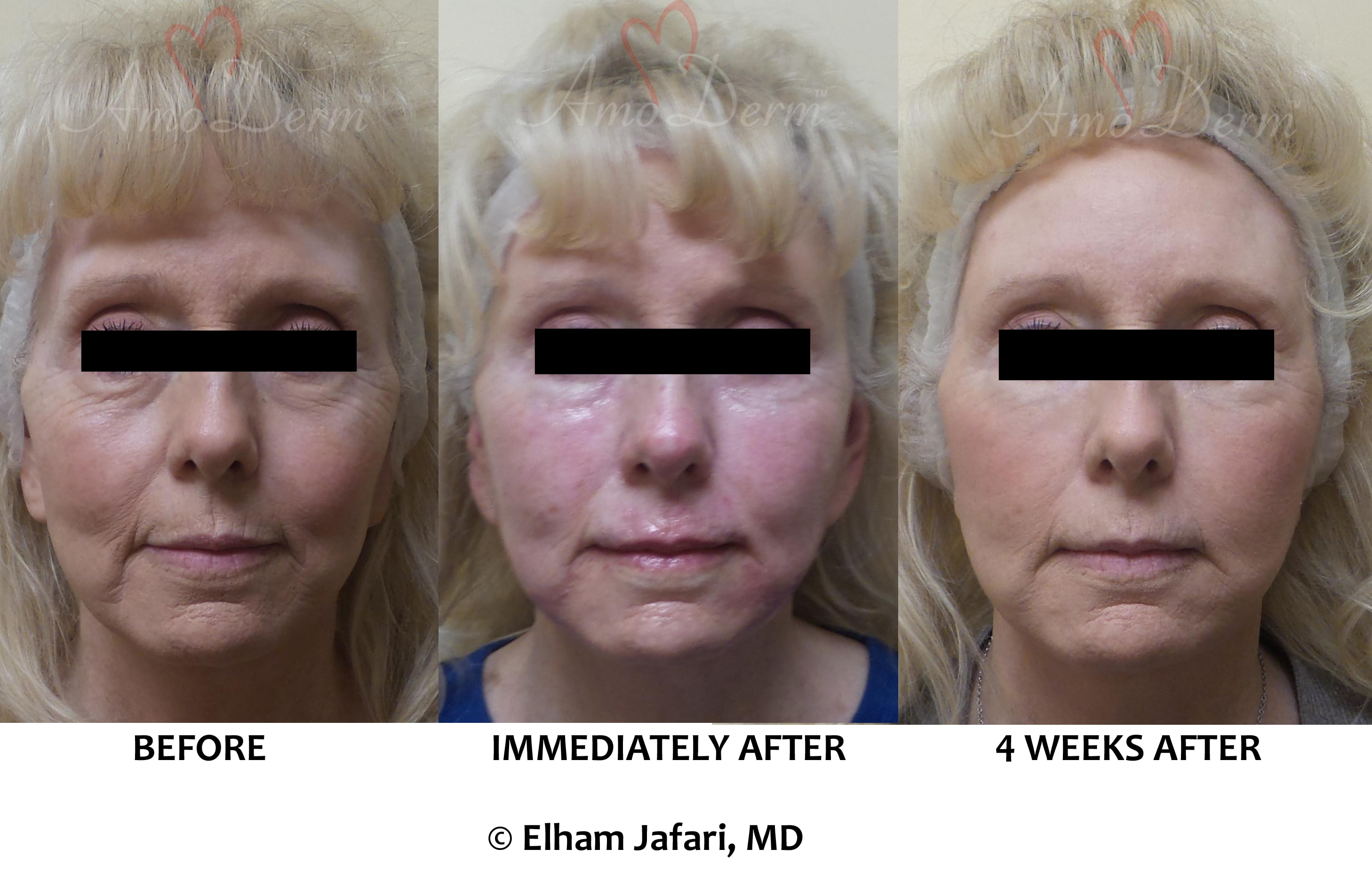 Liquid Facelift with filler injection in cheeks, jaw lines, Marionette lines & above lips
