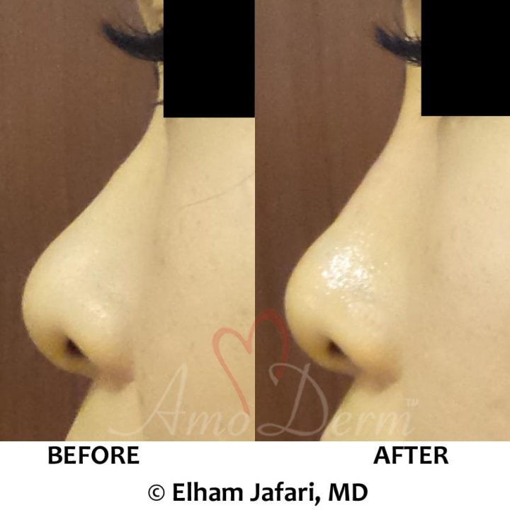 Nonsurgical nose job with injection of dermal fillers