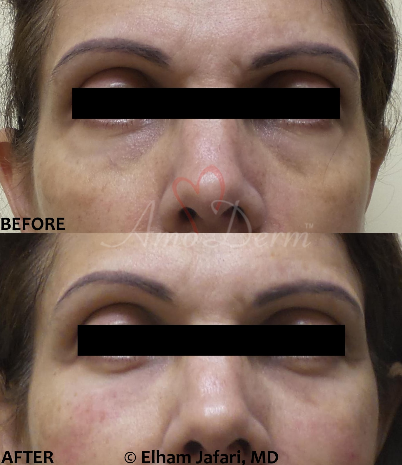 Treatment of dark circles, hollows or bags under eyes