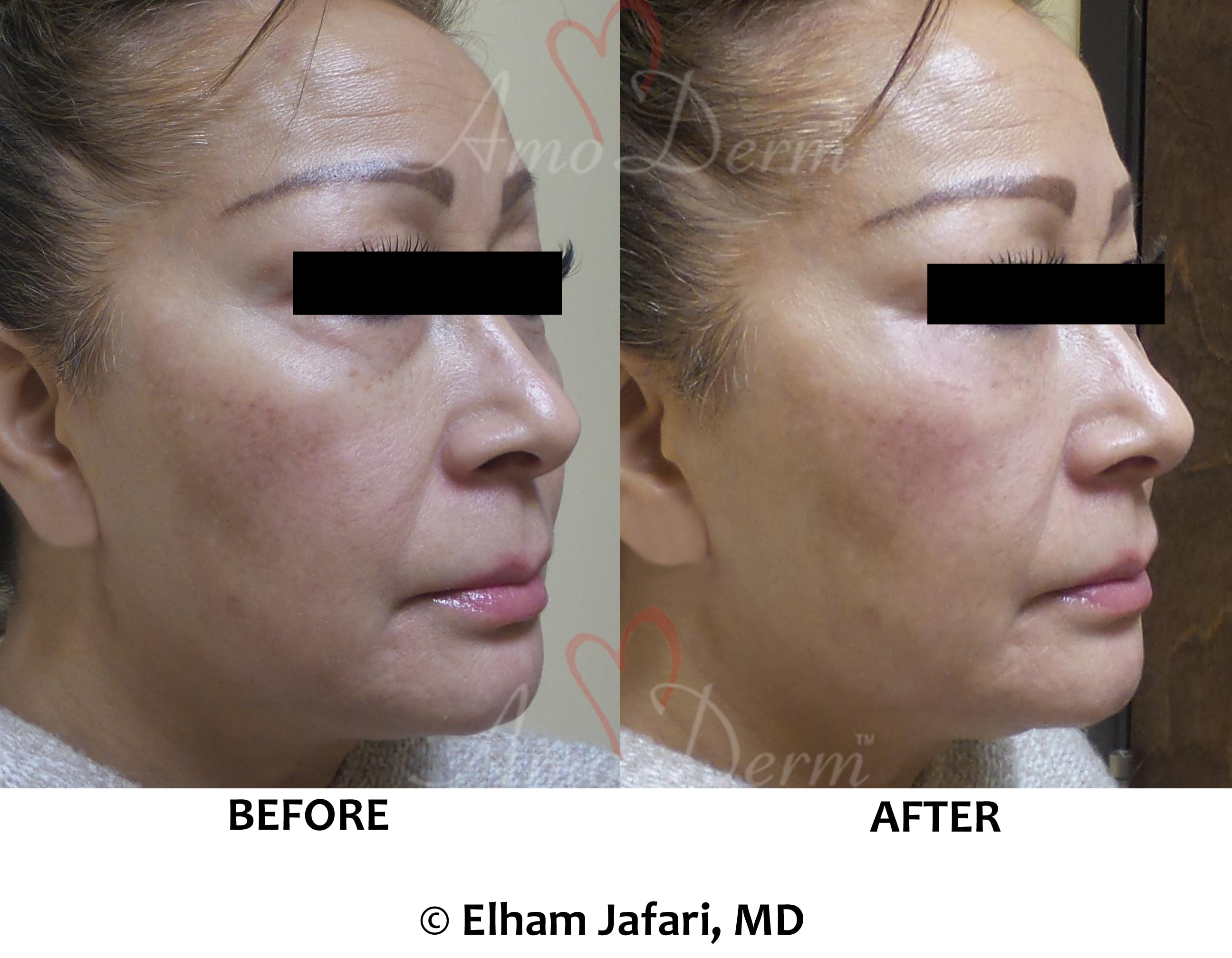 Liquid facelift with filler injection