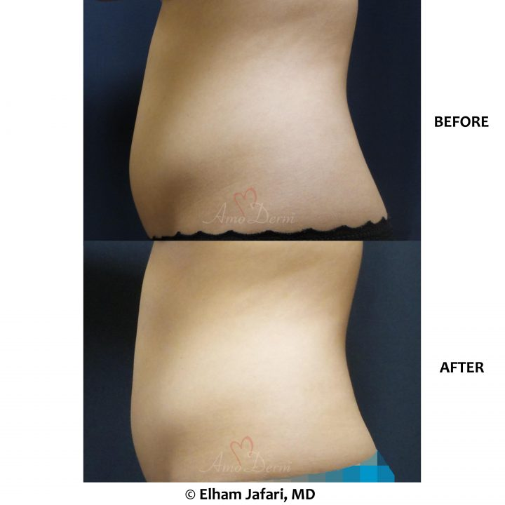 Non-surgical removal of stubborn fat in belly with SculpSure