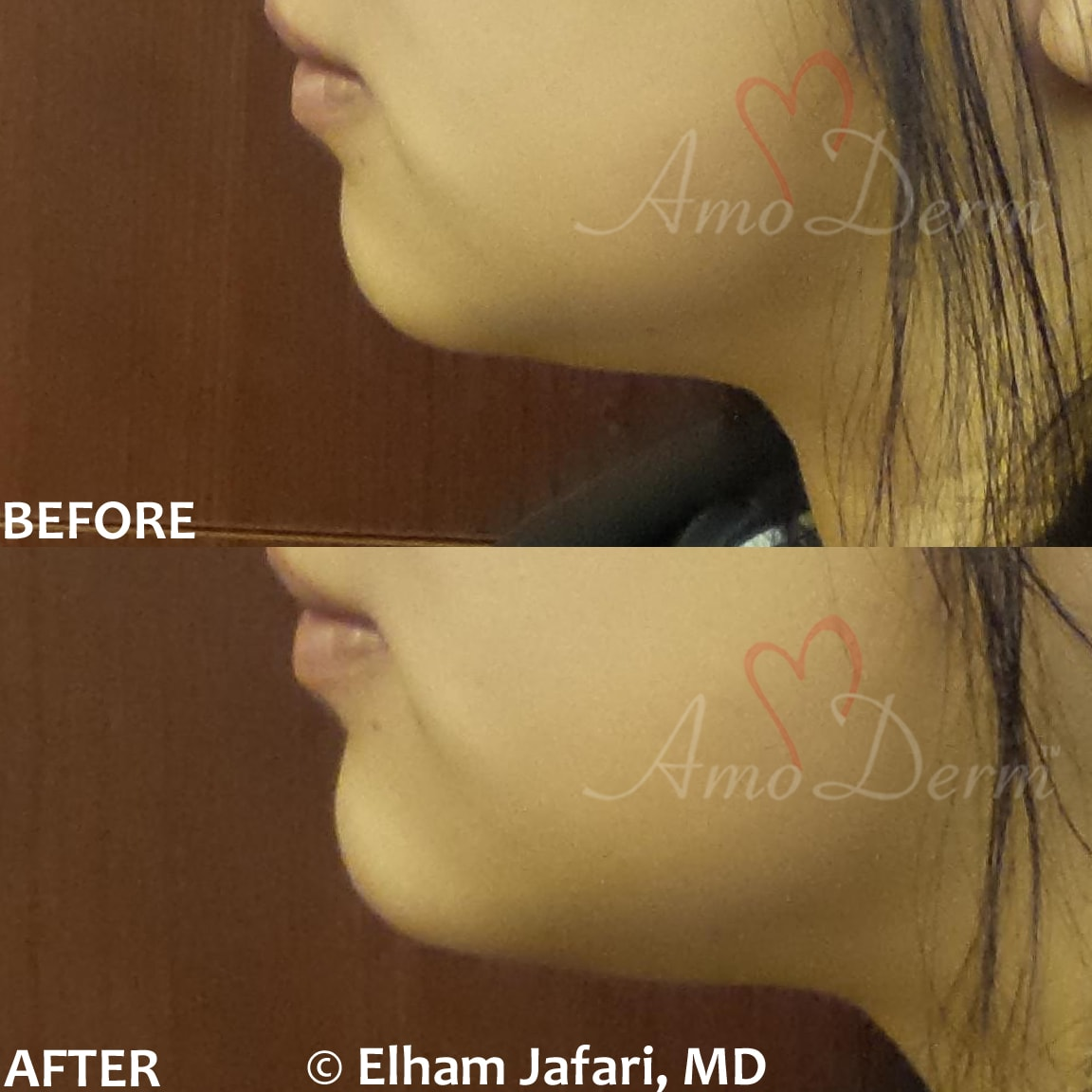 Non surgical chin augmentation and enhancement