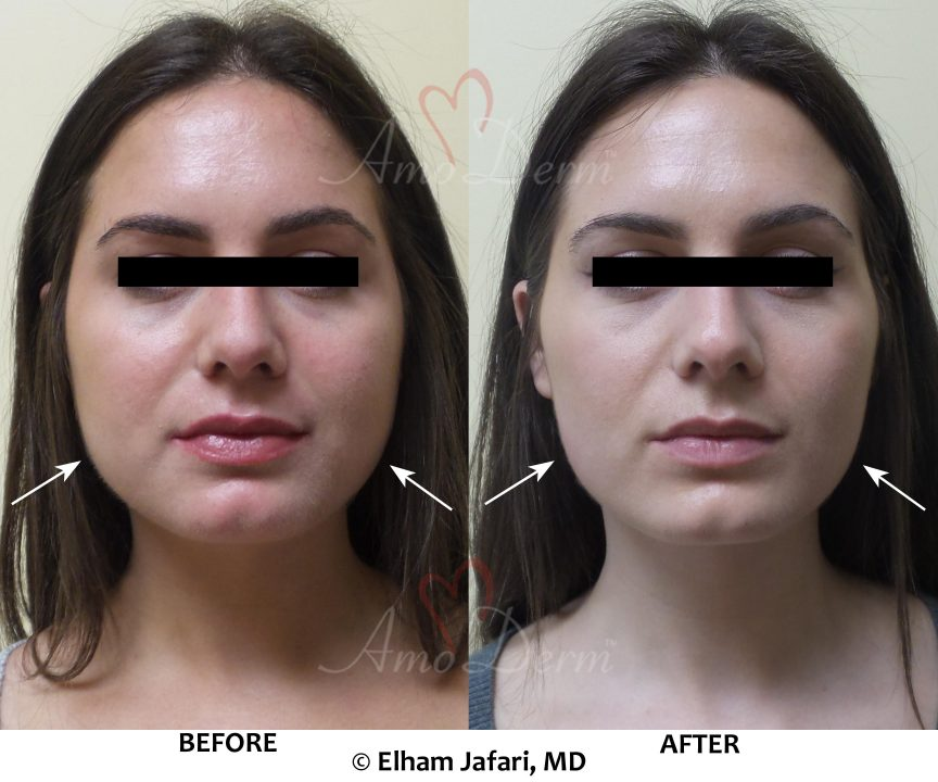 Facial slimming (jaw slimming or jaw reduction) is known as cosmetic facial injection