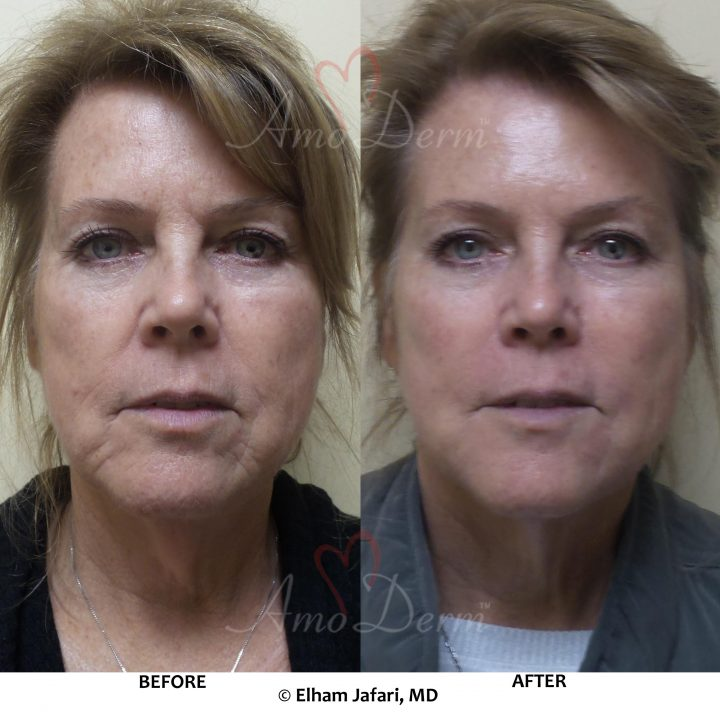 Liquid Facelift with Botox & filler injection in various areas including jawlines, under the eyes & cheeks