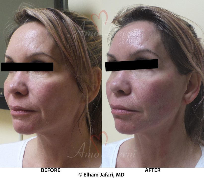 Liquid Facelift with PDO Thread (thread lift) in mid and lower face