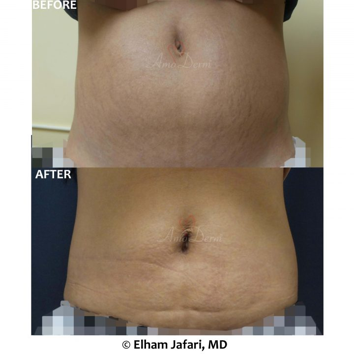 Treatment of stretch marks with CO2 laser & non-surgical removal of stubborn fat in belly with SculpSure