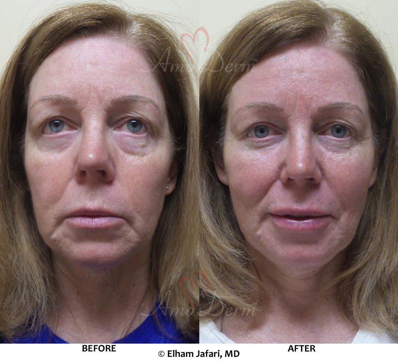 Liquid facelift with filler under eyes (dark circles & bags), cheek restoration and lip augmentation with Belotero, Restylane, Volbella & Voluma