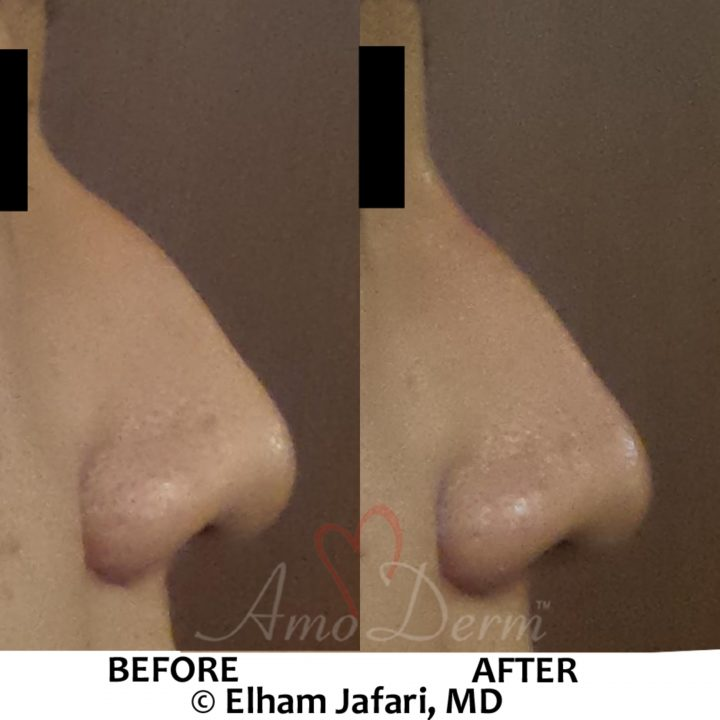 Nonsurgical nose job (liquid rhinoplasty) to reshape the nose & sculpt nose bridge using Juvederm Voluma injection