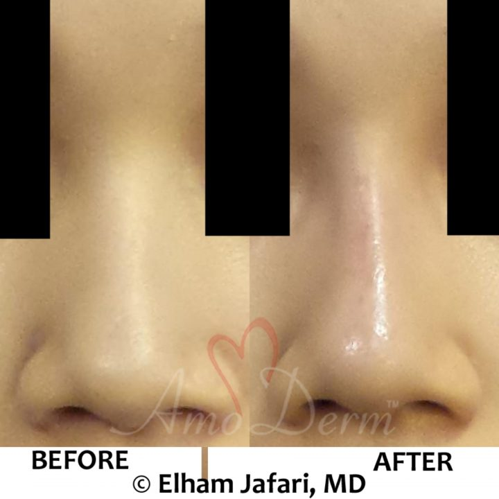 Nonsurgical Nose Job Liquid Rhinoplasty
