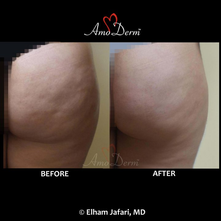 Cellulite treatment in buttocks with Sculptra filler injection as part of Brazilian Butt Lift