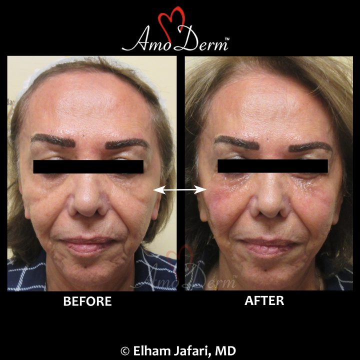 Liquid facelift with filler injection for cheek restoration with Voluma or Bellafill