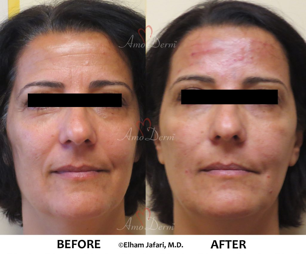 Liquid Facelift And Dark Circles Under Eyes Cosmetic