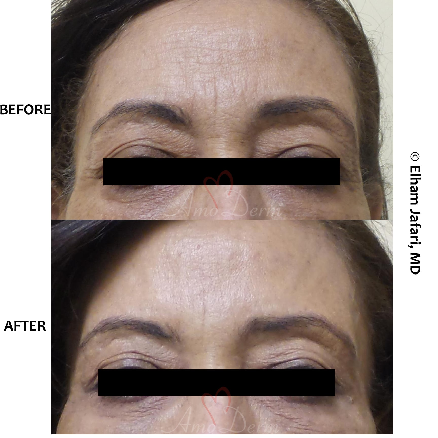 Botox with filler injection