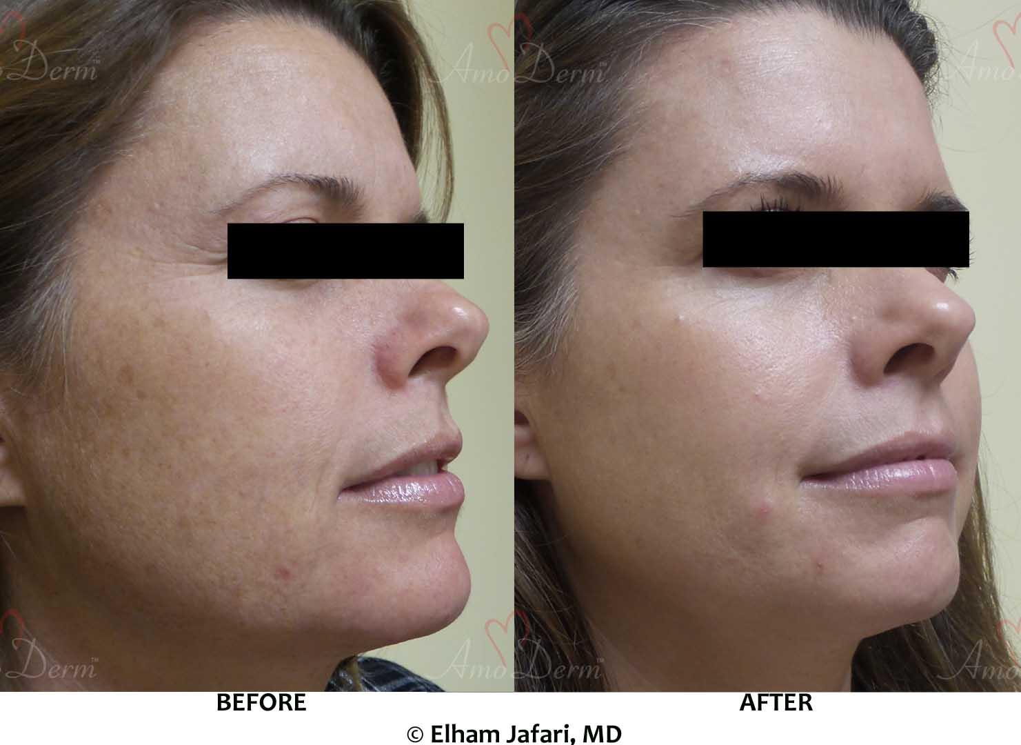 Botox Filler Erbium