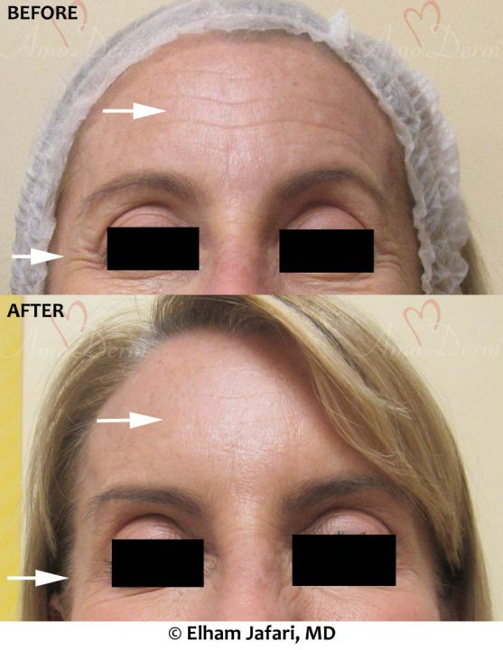 Botox in Forehead Crows Feet & Glabella