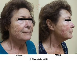 Cheek reconstruction and volume restoration with filler injection using cannula technique