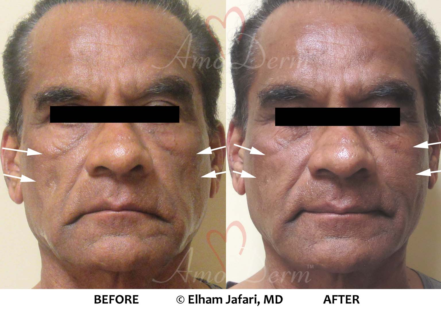 Cheek Volume Restoration Voluma